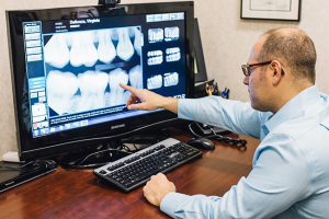 Digital Dental Radiography (X-Rays) | Boynton Beach Dentist