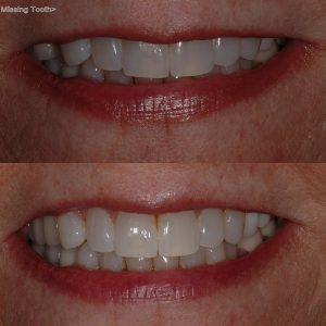 About Our Dental Bridge Procedure | Boynton Beach Dental