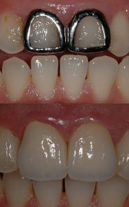 Porcelain Dental Veneers in South Florida | Boynton Beach Dentist