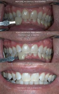 Professional Teeth Whitening in South Florida | Boynton Beach Dentist