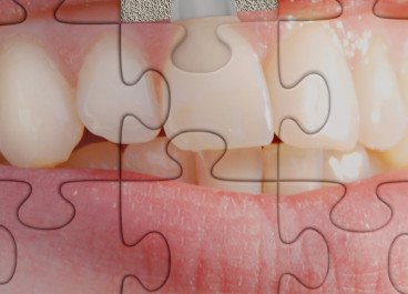 Aesthetic Considerations of Dental Implant Treatment