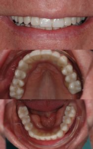"""All-on-4"" Hybrid Implant Supported Dentures 