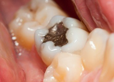 Are Silver Fillings Poisonous?
