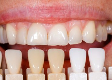 Are Dental Veneers Long Lasting?