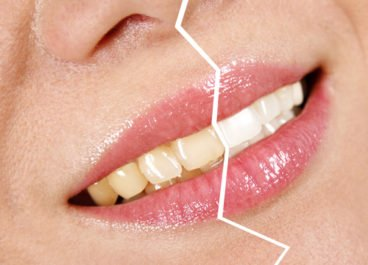 Teeth Whitening and Stained Teeth