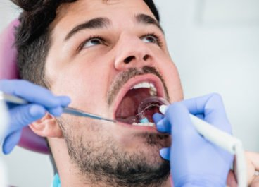 Why You Need Routine Dental Cleanings