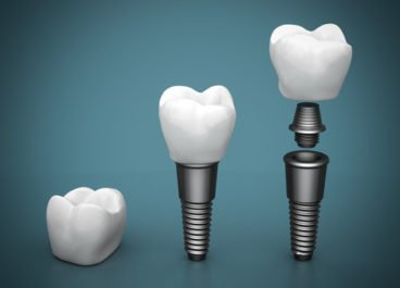 Do You Know what Type of Dental Implant you Have?