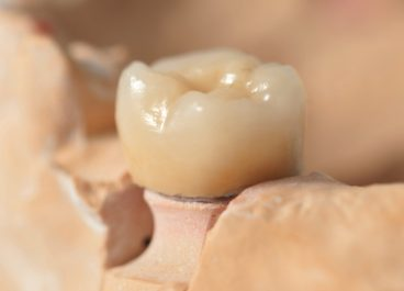 All About Zirconia Dental Restorations