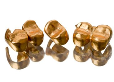 There is Still a Place for Gold in the Dental Practice
