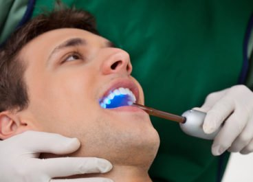Topical Fluoride and Dental Sealants