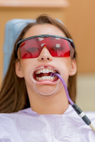 The Importance of Using Eye Safety Protection at the Dentist