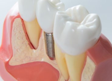 The Future of Implant Dentistry