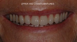 Removable and Partial Dental Dentures | Boynton Beach Dentist