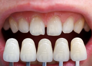 How many Dental Veneers do I Need?