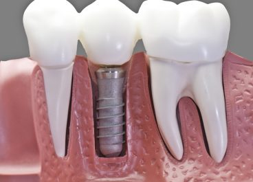 Do you Need a Dental Implant or Bridge?
