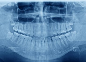 Why Do I Need Dental X-Rays?