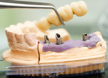 My Approach to Dental Implants – By Jamie A. Alexander, DDS